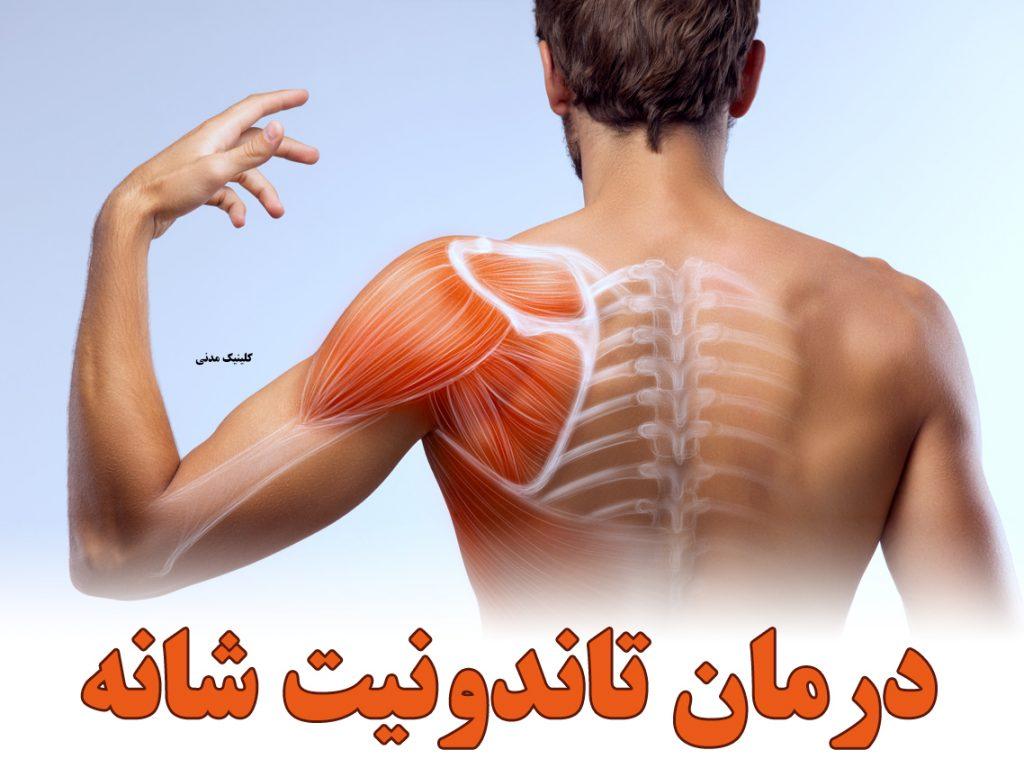 درمان تاندونیت شانه با فیزیوتراپی