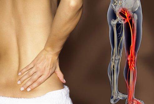 درد سیاتیک و درمان آن